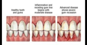 3 images of teeth and gums