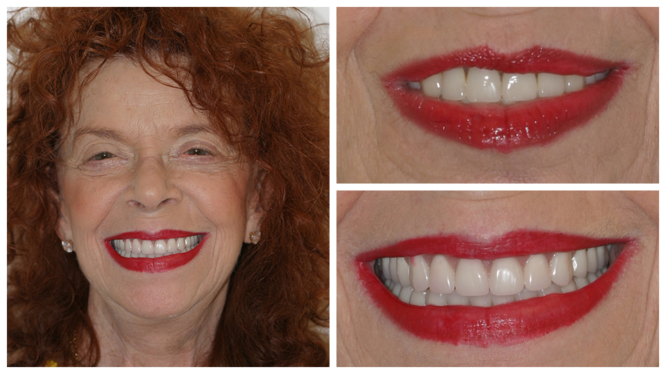 Patient of G. Graber DDS - Before and after dental work