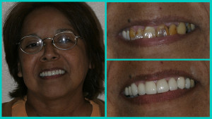 Before and after smile makeover photos