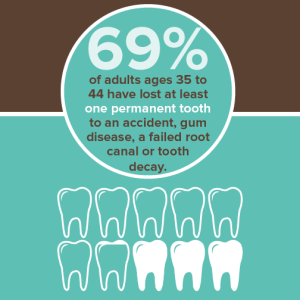 Infographic on lost teeth