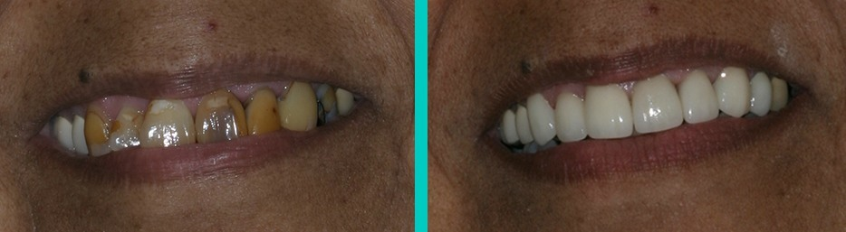 G. Graber DDS Patient before and after photos of dental work