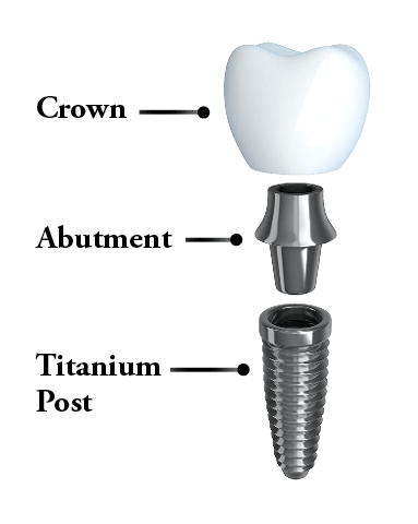Dental implants North Scottsdale - The anatomy of a dental implant