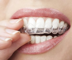 A woman putting in her Invisalign Clear Aligners