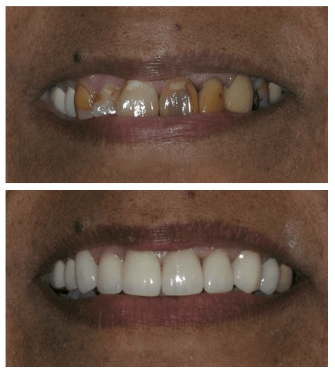Before and after of patient with porcelain veneers in Scottsdale